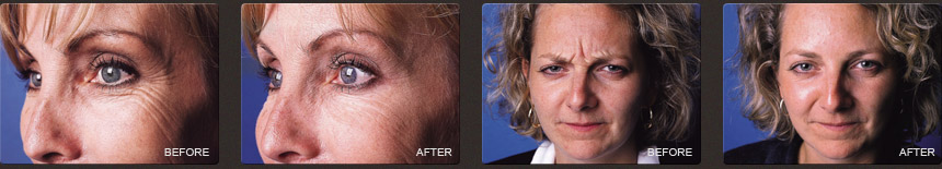 Before and After, Wrinkle Relaxers