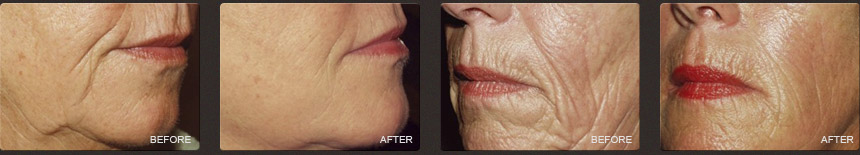 Before and After, Non Surgical Face Lift Fillers